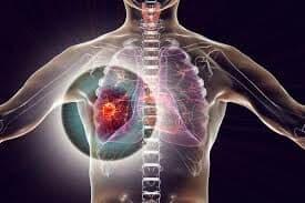 Siapa Lagi Yang Ingin Sehat Tulang, Organ Paru, InsyaAllah Aman dan Terjangkau Untuk Siapa Saja