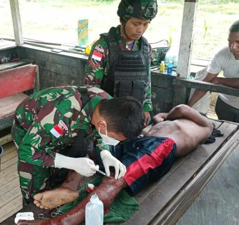 Aksi Sigap Dokter Satgas Yonif 512/QY, Berikan Pertolongan Warga Yang Terluka